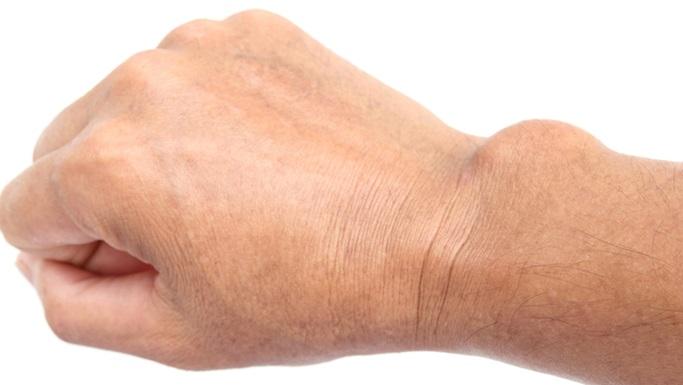 ganglion-cyst-real-universal